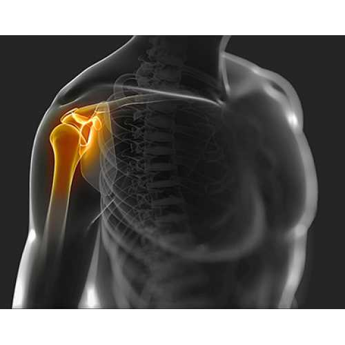 Metodologie pentru tratamentul artrozei articulațiilor șoldului