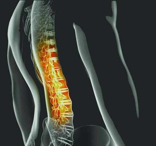 artroza tratament coral club