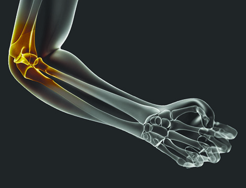 artroza tratament coral club tratament articular intern